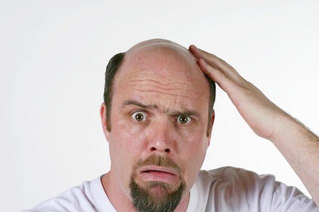 masalah-lelaki-rambur-gugur-botak-cuba-tyzara-shampoo