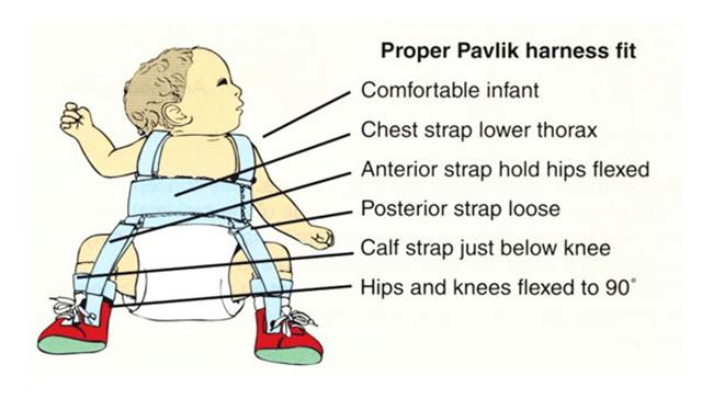 Rawatan-Dysplasia-untuk-bayi