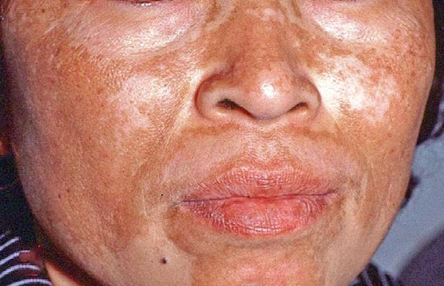 Bahaya Sinar UV